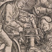 A sixteenth-century scene of several men performing the amputation of a patient's leg.